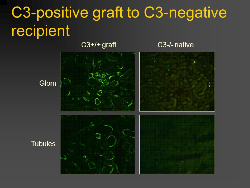 C3-positive graft to C3-negative recipient Glom Tubules C3+/+ graftC3-/- native