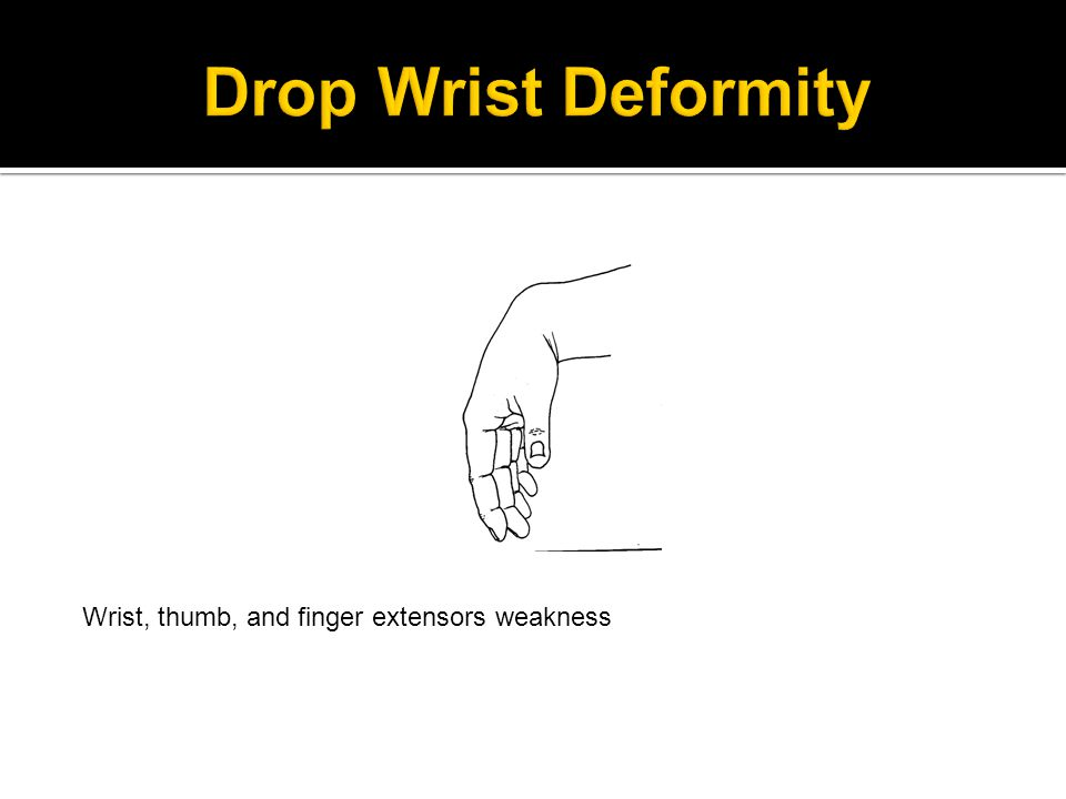 Wrist, thumb, and finger extensors weakness