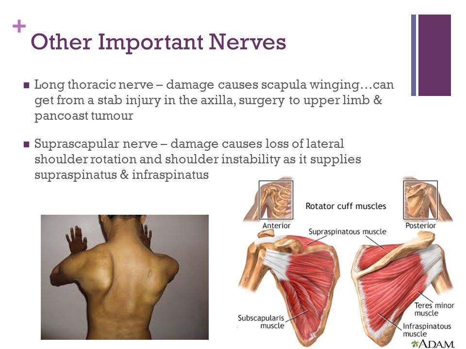 + Other Important Nerves Long thoracic nerve – damage causes scapula winging…can get from a stab injury in the axilla, surgery to upper limb & pancoast tumour Suprascapular nerve – damage causes loss of lateral shoulder rotation and shoulder instability as it supplies supraspinatus & infraspinatus