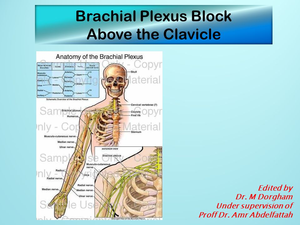 Brachial Plexus Block Above the Clavicle Edited by Dr. M Dorgham Under supervision of Proff Dr. Amr Abdelfattah