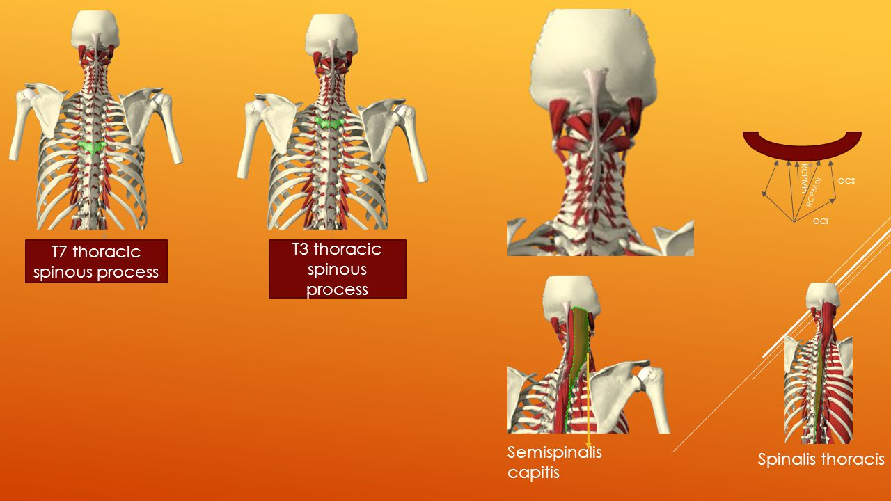 T7 thoracic spinous process T3 thoracic spinous process RCPMin OCI OCS RCPMaj Semispinalis capitis Spinalis thoracis