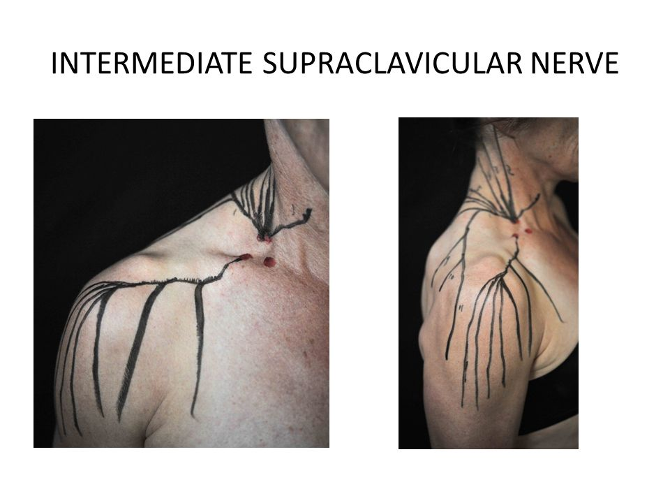 INTERMEDIATE SUPRACLAVICULAR NERVE