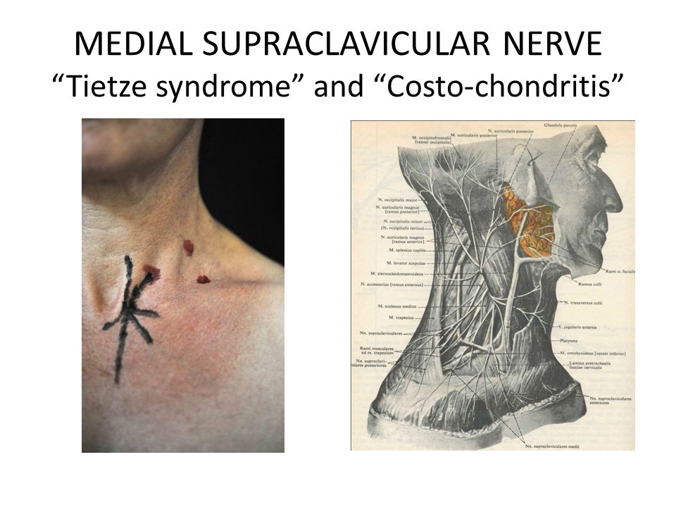 """MEDIAL SUPRACLAVICULAR NERVE """"Tietze syndrome"""" and """"Costo-chondritis"""""""