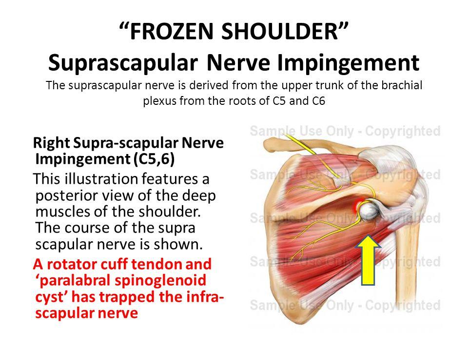 """FROZEN SHOULDER"" Suprascapular Nerve Impingement The suprascapular nerve is derived from the upper trunk of the brachial plexus from the roots of C5"