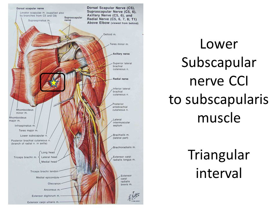 Lower Subscapular nerve CCI to subscapularis muscle Triangular interval