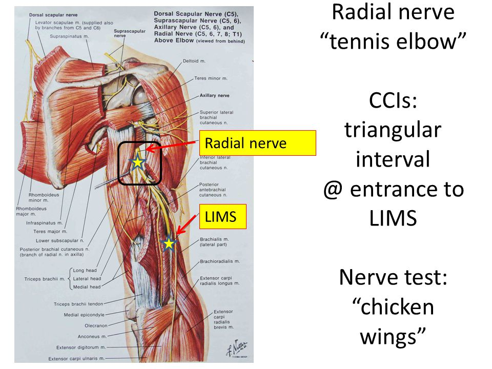 """Radial nerve """"tennis elbow"""" CCIs: triangular interval @ entrance to LIMS Nerve test: """"chicken wings"""" Radial nerve LIMS"""