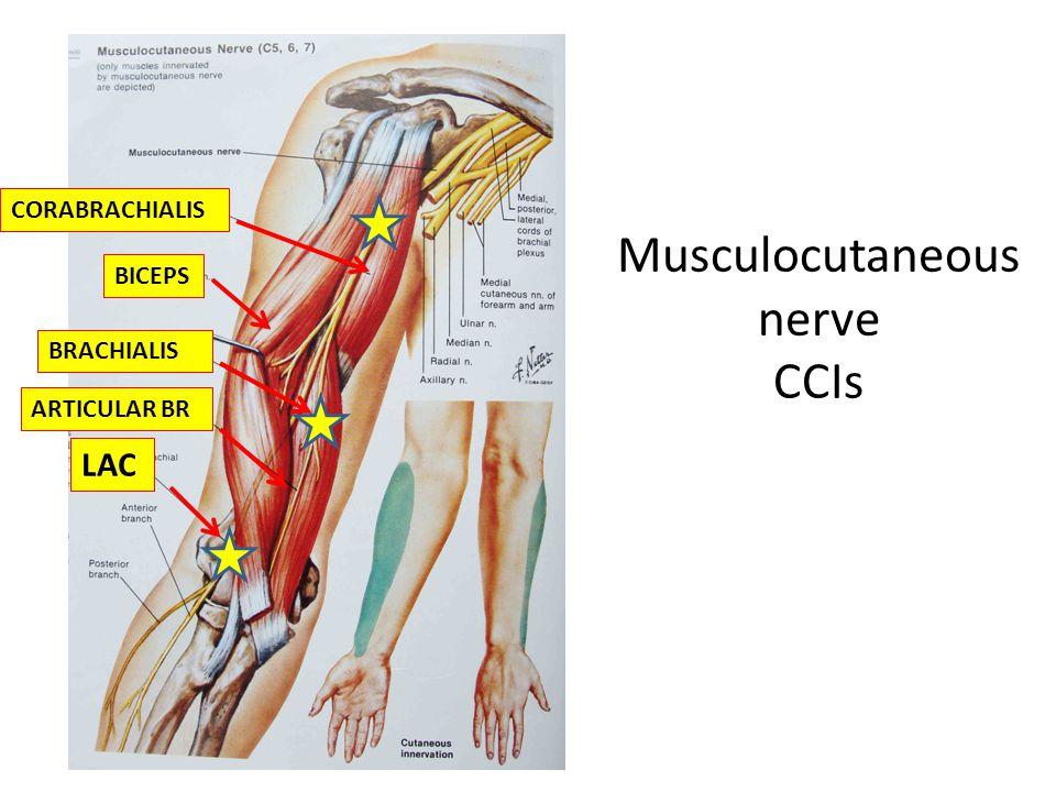 Musculocutaneous nerve CCIs LAC BRACHIALIS ARTICULAR BR CORABRACHIALIS BICEPS