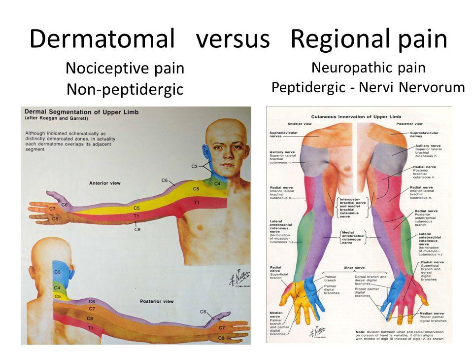 Dermatomal versus Regional pain Nociceptive pain Non-peptidergic Neuropathic pain Peptidergic - Nervi Nervorum