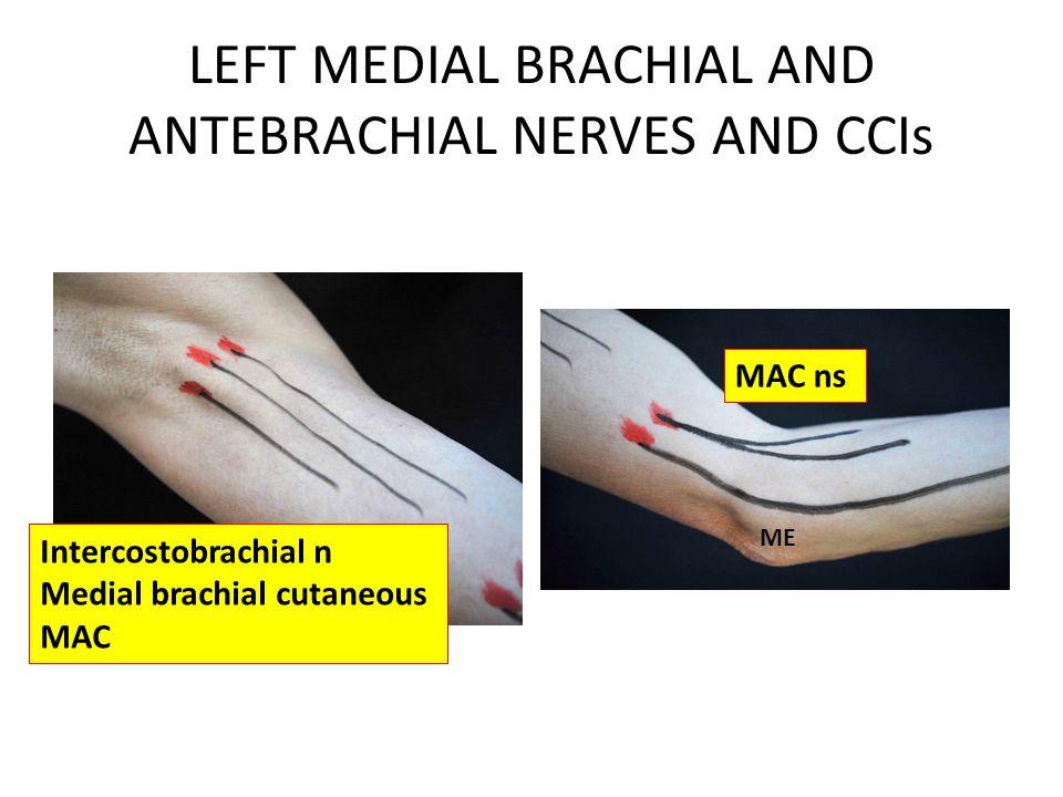 LEFT MEDIAL BRACHIAL AND ANTEBRACHIAL NERVES AND CCIs ME MAC ns Intercostobrachial n Medial brachial cutaneous MAC