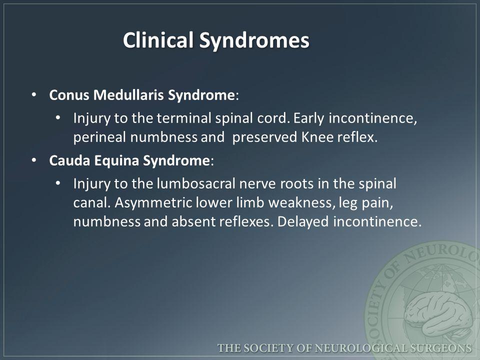 Conus Medullaris Syndrome: Injury to the terminal spinal cord.