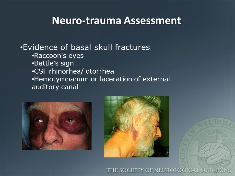 Neuro-trauma Assessment Evidence of basal skull fractures Raccoon's eyes Battle's sign CSF rhinorhea/ otorrhea Hemotympanum or laceration of external