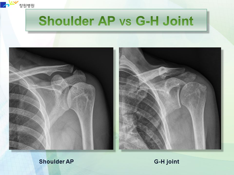 Shoulder APG-H joint