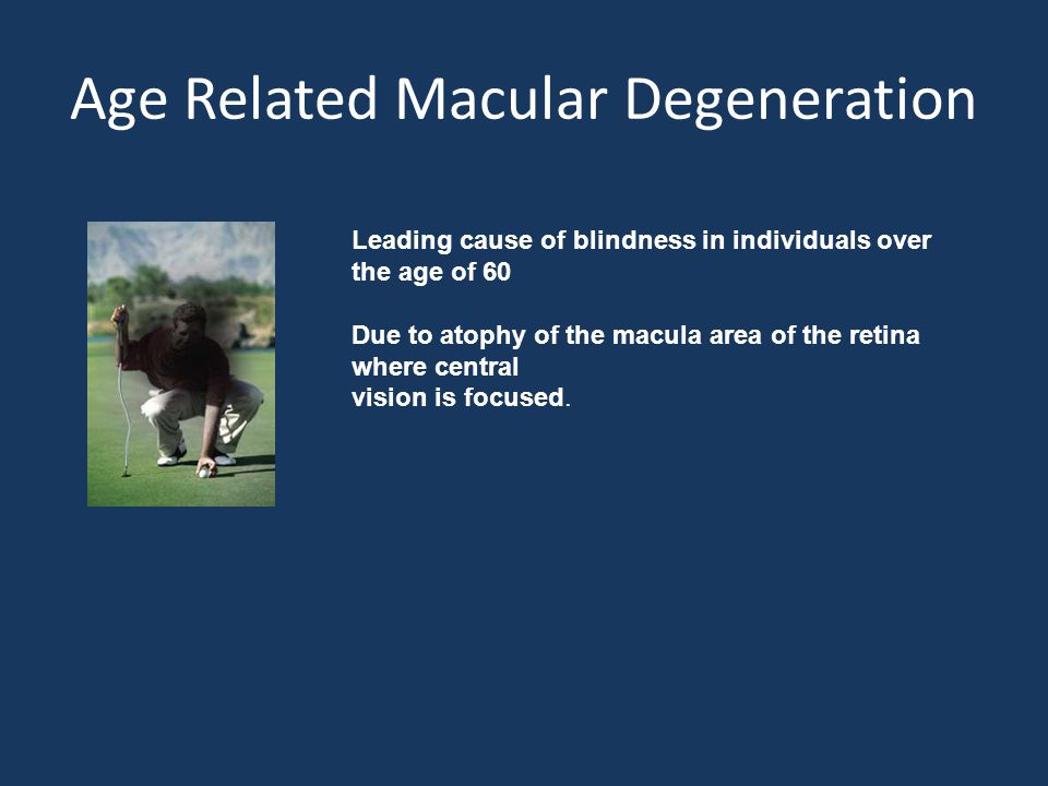 Age Related Macular Degeneration Leading cause of blindness in individuals over the age of 60 Due to atophy of the macula area of the retina where central vision is focused.