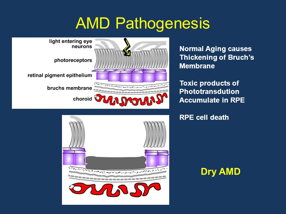 AMD Pathogenesis Normal Aging causes Thickening of Bruch's Membrane Toxic products of Phototransdution Accumulate in RPE RPE cell death Dry AMD
