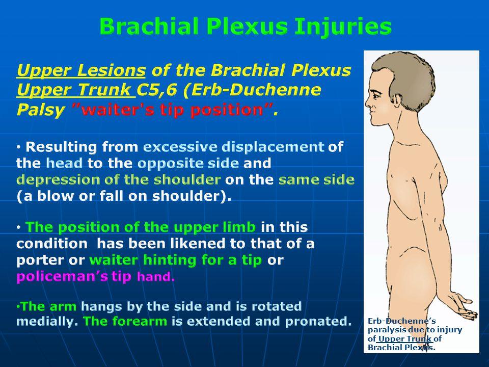 Erb-Duchenne's paralysis due to injury of Upper Trunk of Brachial Plexus.