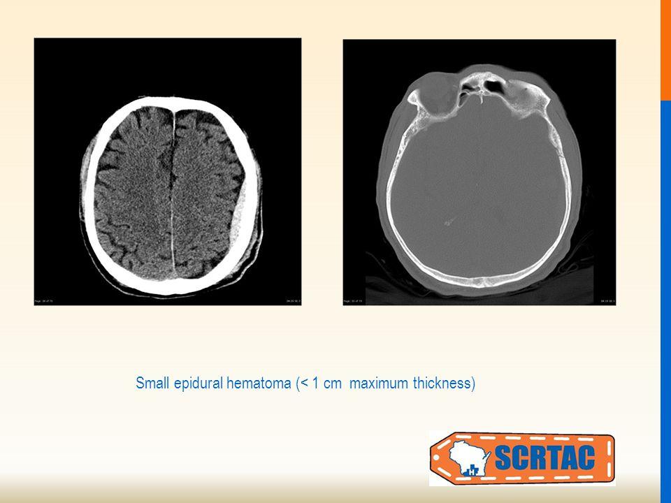 Small epidural hematoma (< 1 cm maximum thickness)
