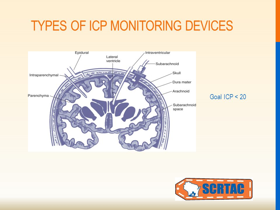 TYPES OF ICP MONITORING DEVICES Goal ICP < 20