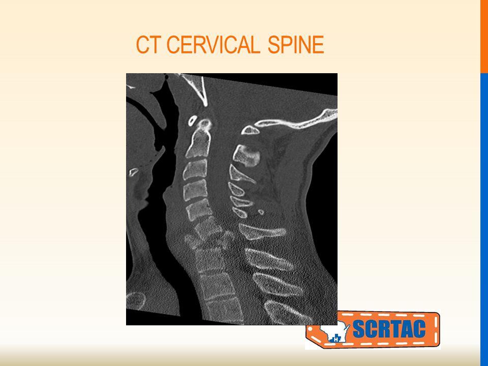 CT CERVICAL SPINE