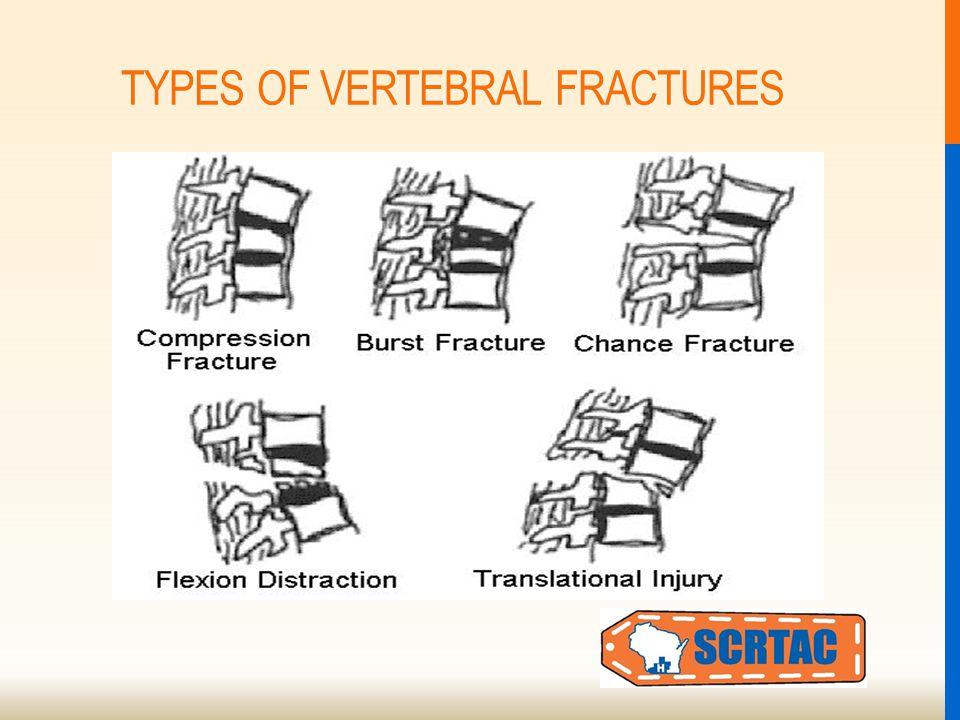 TYPES OF VERTEBRAL FRACTURES