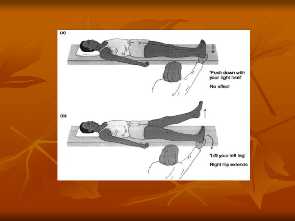 Special Tests - 7 Pelvic Rock: The patient lying supine, the examiner places hands on the iliac crests of the patient with thumbs on the anterior superior iliac spines, and palms on the iliac tubercles.