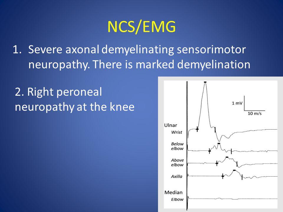 NCS/EMG 1.Severe axonal demyelinating sensorimotor neuropathy.