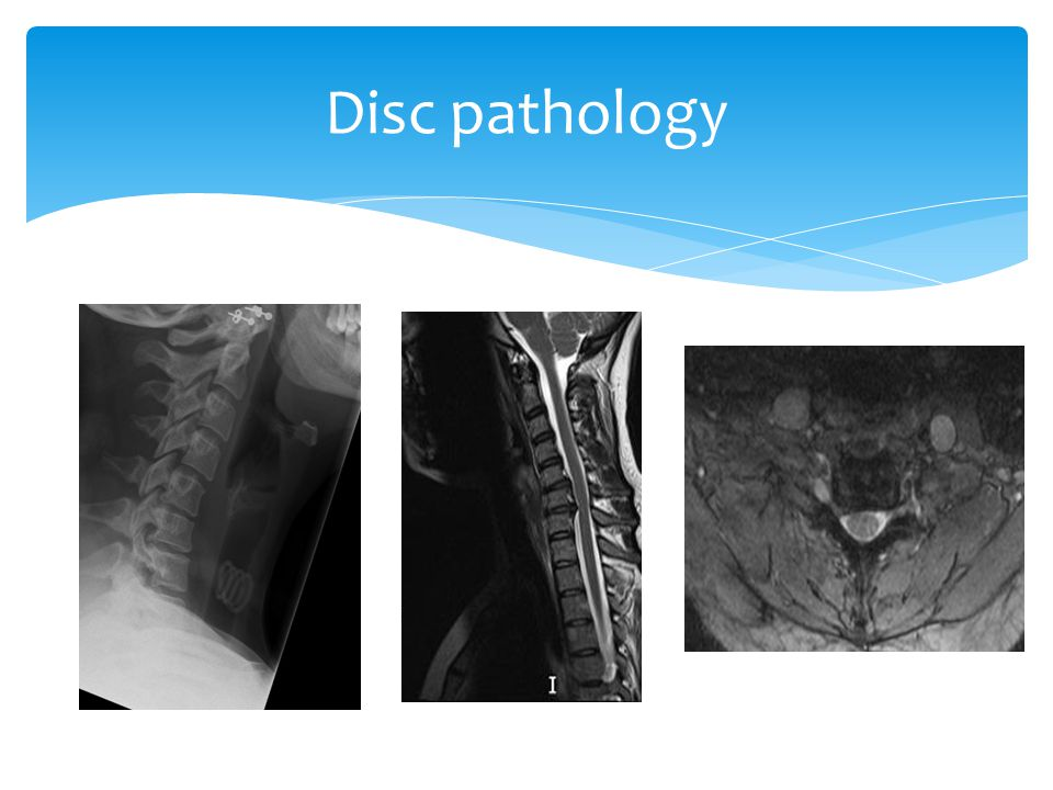 Disc pathology