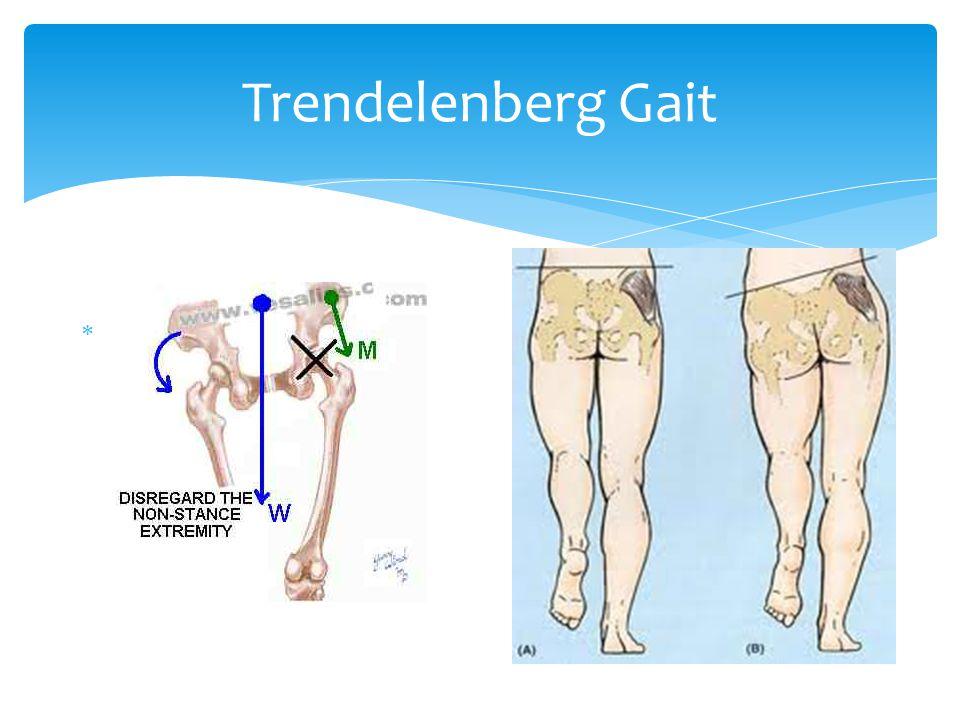 Trendelenberg Gait 