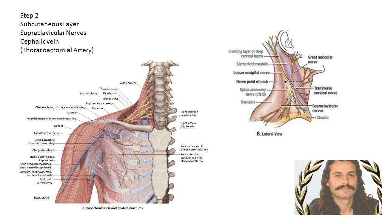 Step 2 Subcutaneous Layer Supraclavicular Nerves Cephalic vein (Thoracoacromial Artery)