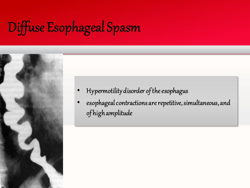 Diffuse Esophageal Spasm Hypermotility disorder of the esophagus esophageal contractions are repetitive, simultaneous, and of high amplitude Hypermoti