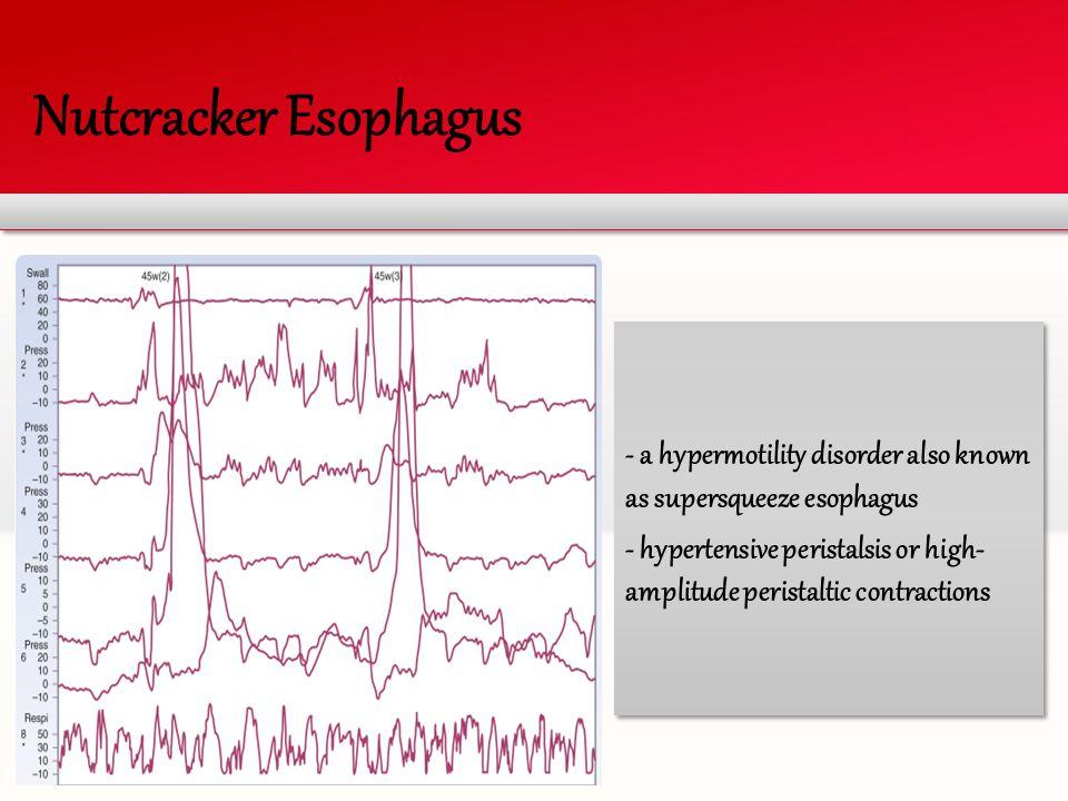 Nutcracker Esophagus - a hypermotility disorder also known as supersqueeze esophagus - hypertensive peristalsis or high- amplitude peristaltic contrac