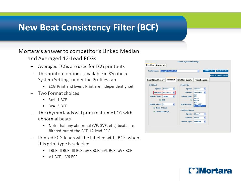 New Beat Consistency Filter (BCF) Mortara's answer to competitor's Linked Median and Averaged 12-Lead ECGs –Averaged ECGs are used for ECG printouts –
