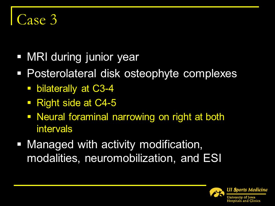 Case 3  MRI during junior year  Posterolateral disk osteophyte complexes  bilaterally at C3-4  Right side at C4-5  Neural foraminal narrowing on