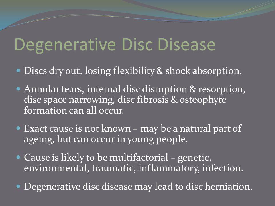 Degenerative Disc Disease Discs dry out, losing flexibility & shock absorption. Annular tears, internal disc disruption & resorption, disc space narro