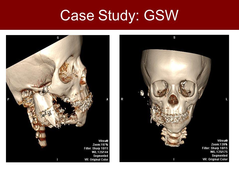 Case Study: GSW