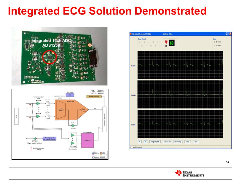 14 Integrated ECG Solution Demonstrated Integrated 16ch ADC ADS1258