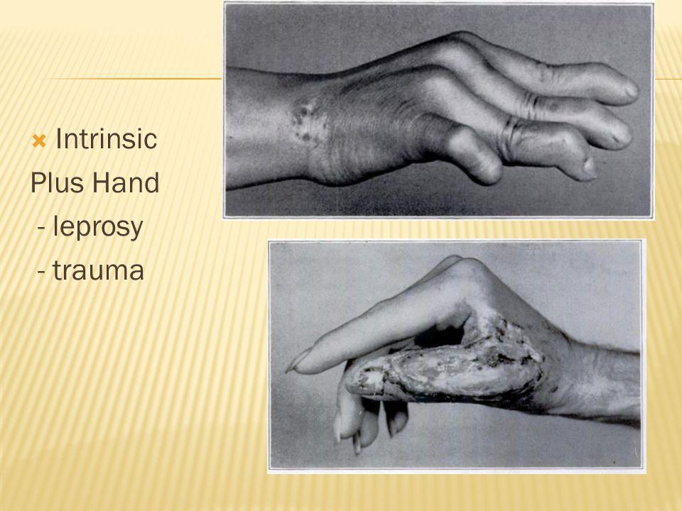  Intrinsic Plus Hand - leprosy - trauma