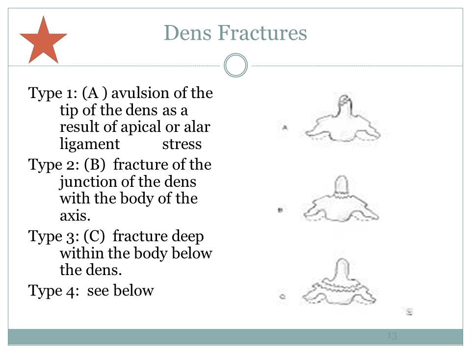 Dens Fractures Type 1: (A ) avulsion of the tip of the dens as a result of apical or alar ligament stress Type 2: (B) fracture of the junction of the dens with the body of the axis.