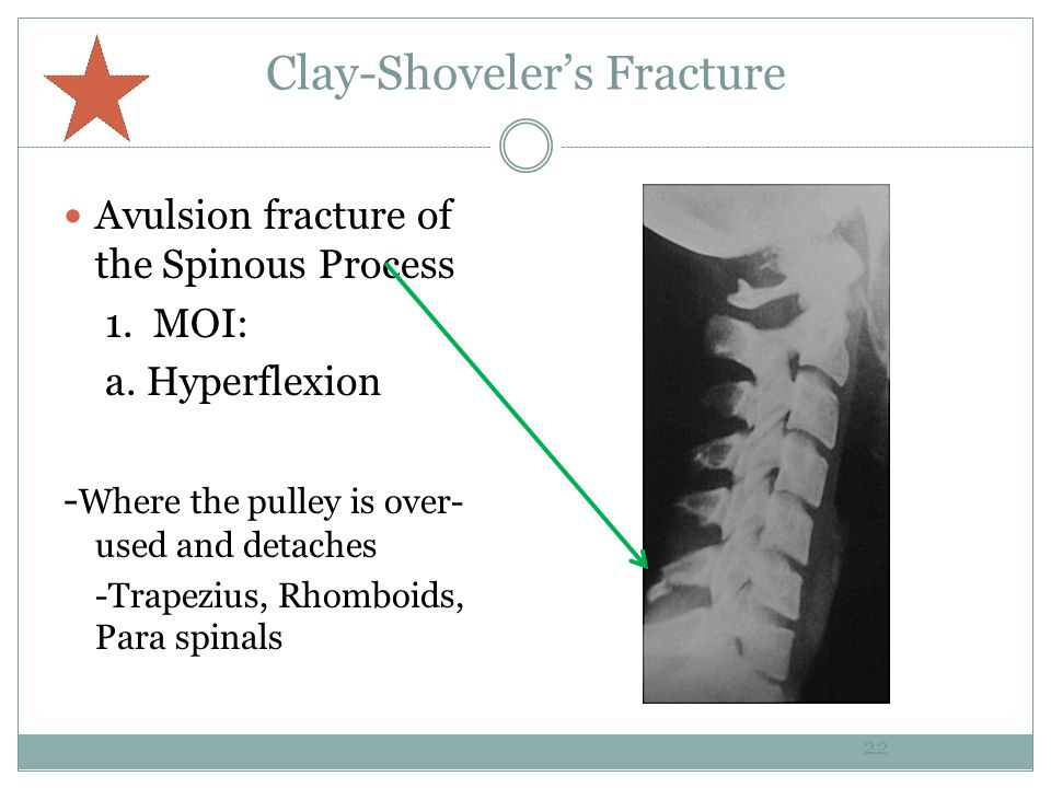Clay-Shoveler's Fracture Avulsion fracture of the Spinous Process 1.