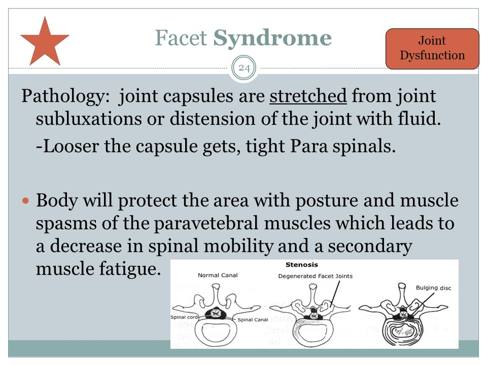 Facet Syndrome Pathology: joint capsules are stretched from joint subluxations or distension of the joint with fluid.