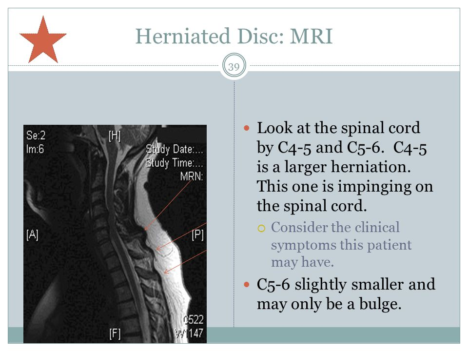 Herniated Disc: MRI Look at the spinal cord by C4-5 and C5-6.