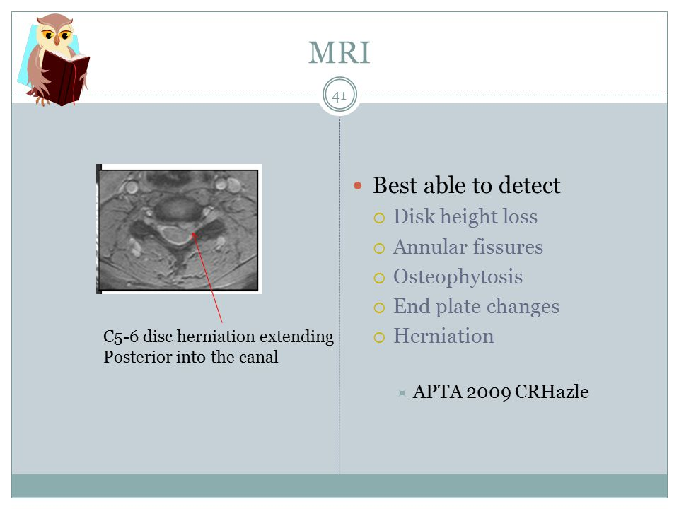 MRI Best able to detect  Disk height loss  Annular fissures  Osteophytosis  End plate changes  Herniation  APTA 2009 CRHazle C5-6 disc herniation extending Posterior into the canal 41