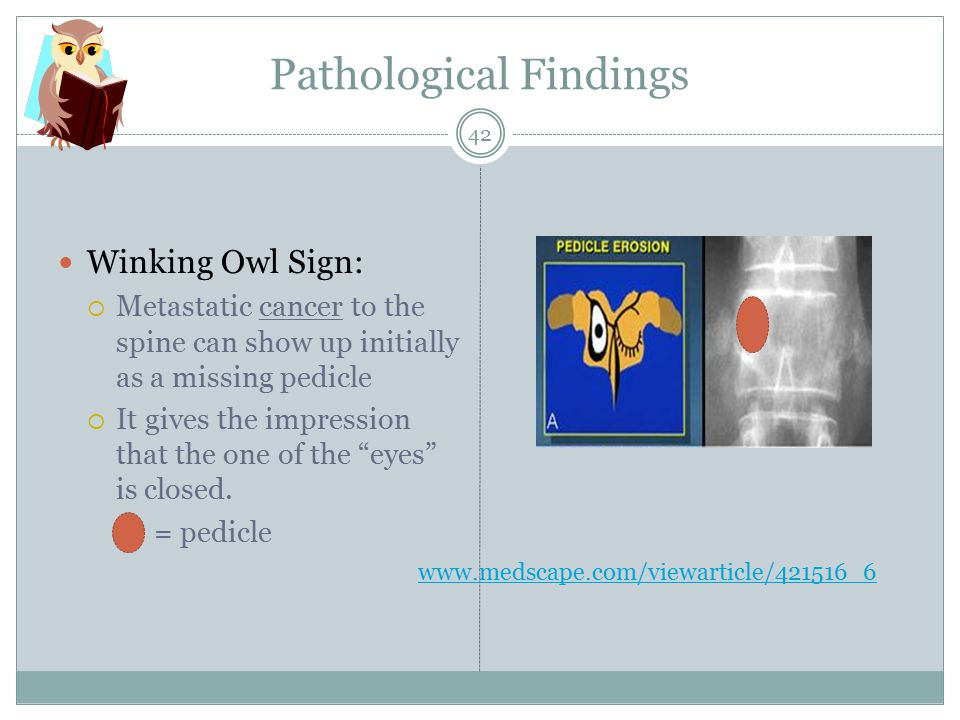 Pathological Findings Winking Owl Sign:  Metastatic cancer to the spine can show up initially as a missing pedicle  It gives the impression that the one of the eyes is closed.