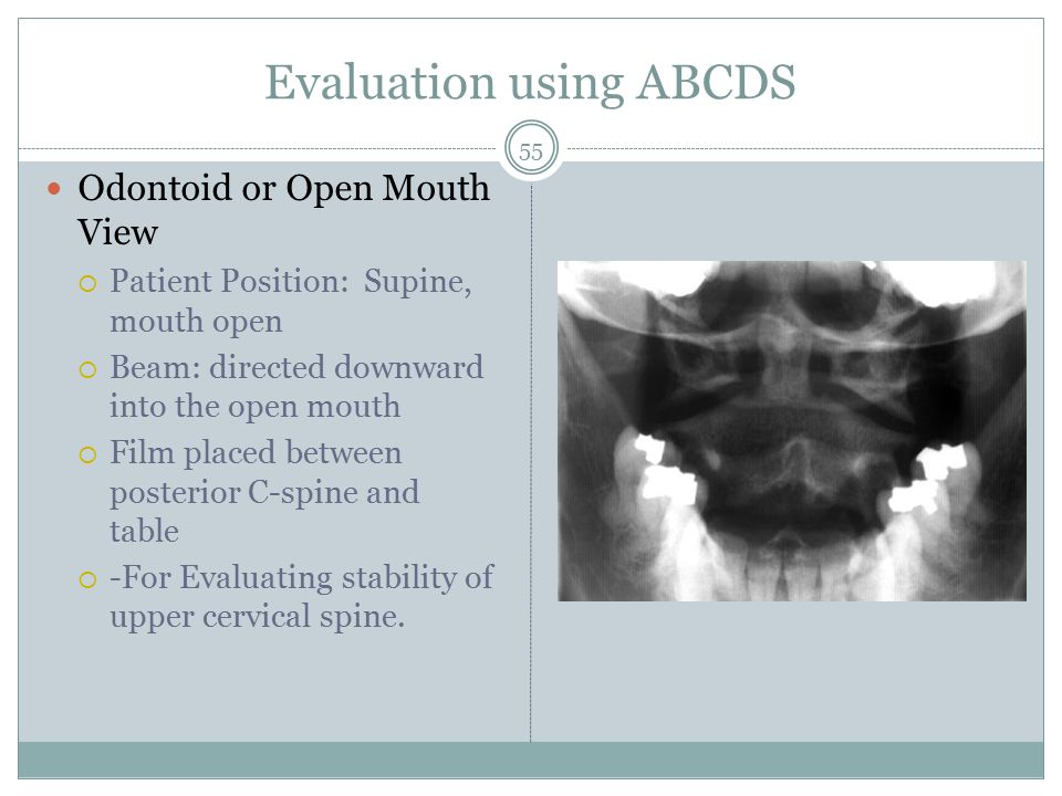 Evaluation using ABCDS Odontoid or Open Mouth View  Patient Position: Supine, mouth open  Beam: directed downward into the open mouth  Film placed between posterior C-spine and table  -For Evaluating stability of upper cervical spine.