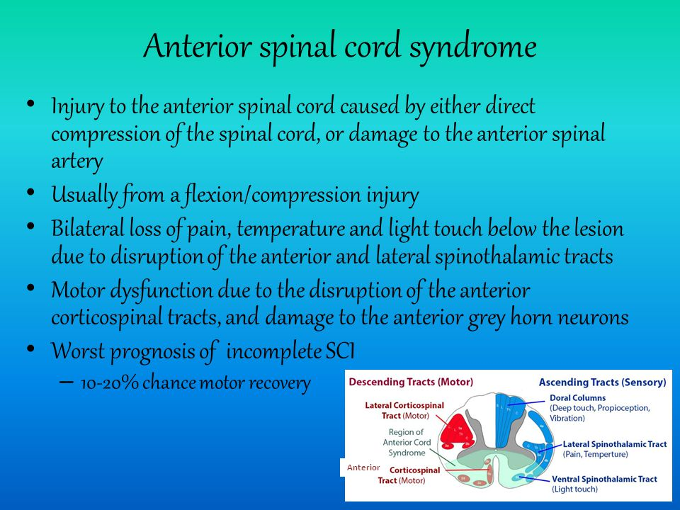 Anterior spinal cord syndrome Injury to the anterior spinal cord caused by either direct compression of the spinal cord, or damage to the anterior spinal artery Usually from a flexion/compression injury Bilateral loss of pain, temperature and light touch below the lesion due to disruption of the anterior and lateral spinothalamic tracts Motor dysfunction due to the disruption of the anterior corticospinal tracts, and damage to the anterior grey horn neurons Worst prognosis of incomplete SCI – 10-20% chance motor recovery Anterior