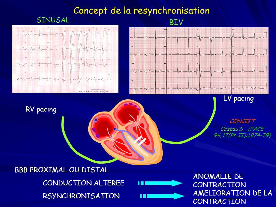 Prévalence et valeur pronostique de la désynchronisation ventriculaire 41% Schoeller 53% Aaronson 27% Aaronson 46% Lamp 31% Shamim 0 50 100 150 200 <120 ms >120 ms Nombre de patients 60% 70% 80% 90% 100% 060120180240300360 Days in Trial Cumulative Survival QRS Duration (msec) <90 90-120 -170 -220 >220 Adapted from Gottipaty et al.