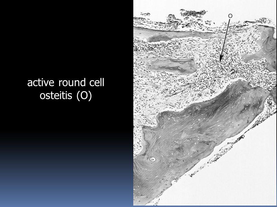 18 active round cell osteitis (O)