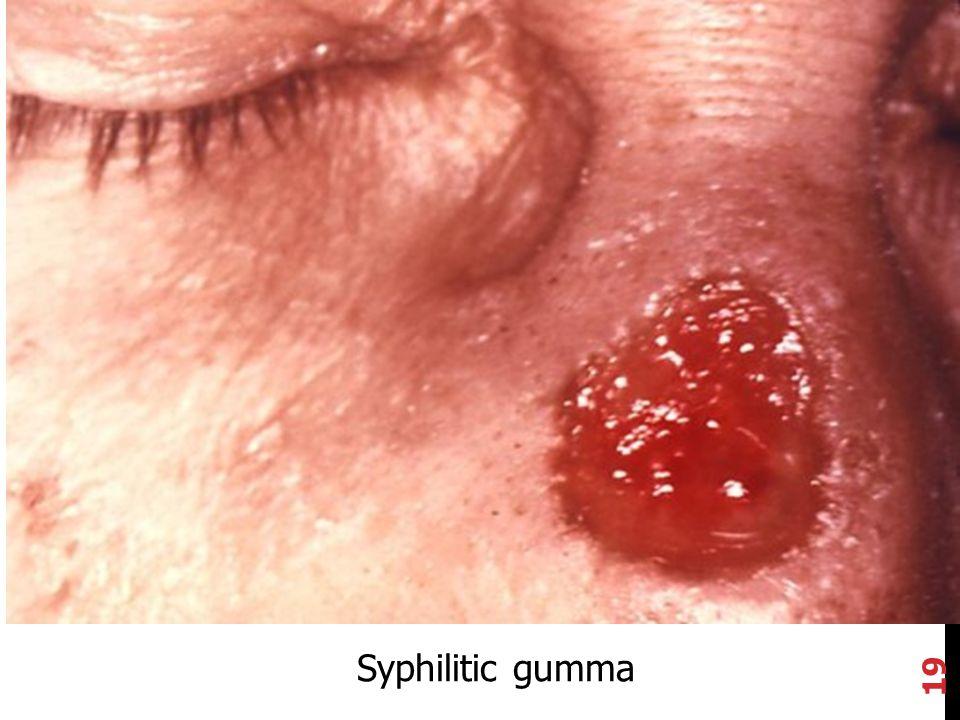 19 Syphilitic gumma