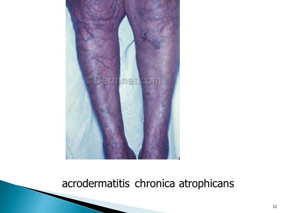 22 acrodermatitis chronica atrophicans