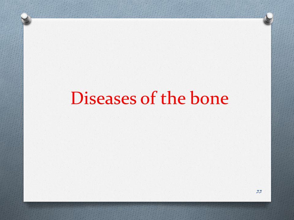 Diseases of the bone 33