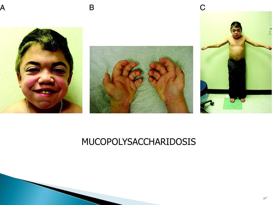 47 MUCOPOLYSACCHARIDOSIS